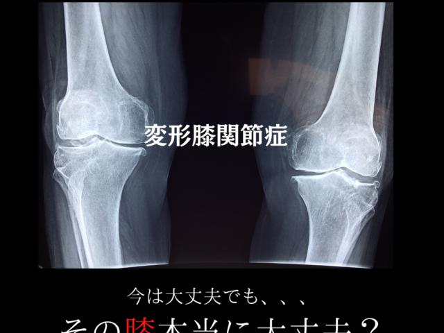膝の痛み(変形性膝関節症)について
